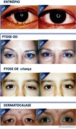 oculoplastica_diversas_imagens