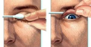 cisco no olho