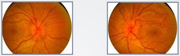 doenças-nervo-óptico