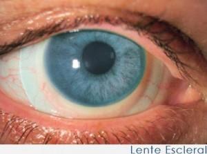 lente escleral