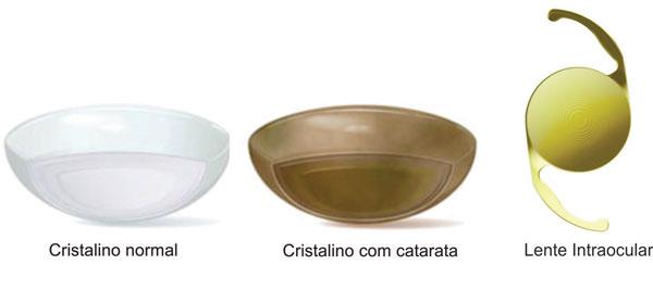 lentes-intraoculares_cristalinos