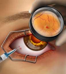 Lucentis e Avastin - tratamentos para a degeneração macular são injetadas diretamente no olho