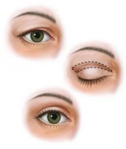 Eyelid-surgery-Illustration-Prasad-Cosmetic-e1442507786910