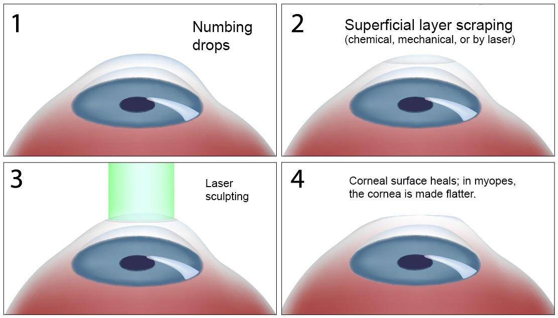 242307877 Livre-se dos óculos! Saiba mais sobre Cirurgia Refrativa - PRK e ...
